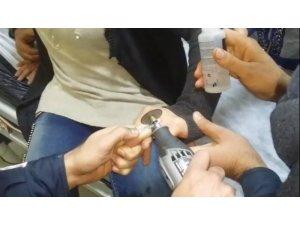 Genç kadının parmağına sıkışan yüzük kesilerek çıkarıldı
