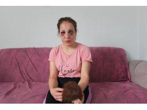 3 çocuk annesi Özlem'i bu hale kocası getirdi
