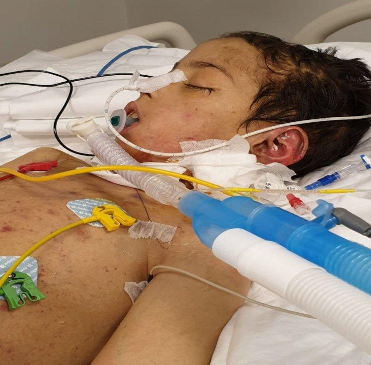 Öpücük hastalığı nedeniyle komaya giren çocuğun annesi konuştu